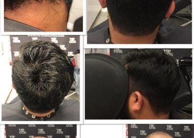 Hair system transformation
