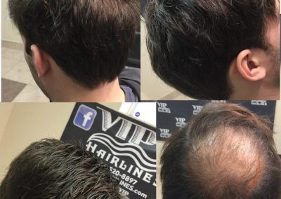 Non surgical hair replacement for men