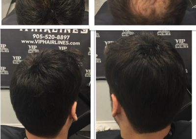 Non surgical hair replacement for men of all ages
