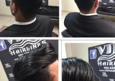 Hair loss solution for men!