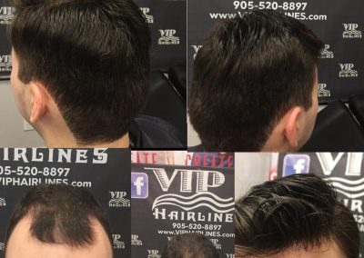 Perfect solution for a receding hairline!