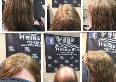Hair replacement specialist for hair loss