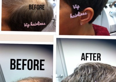 Female hair replacement.