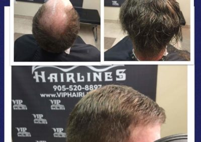 Mens hairpieces and hair systems in the Niagara Region