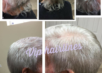 Hair pieces for seniors