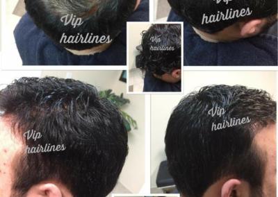 Hair systems from Hamilton and Burlington.