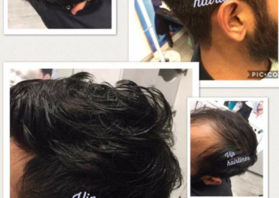 Young mans hair system
