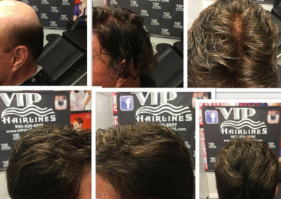 Hair system short and tapered.