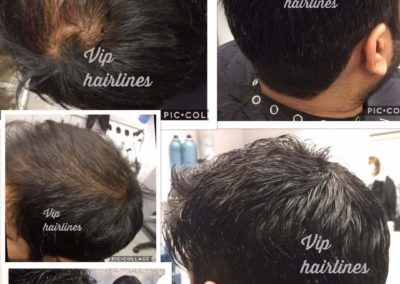 Hair systems in Stoney creek and Burlington