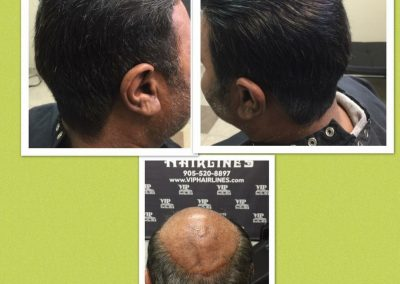 Men's hair systems in Burlington and Stoney creek