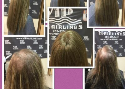Women's hair systems in stoney creek and Burlington