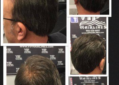Men's hair system in Burlington and Stoney creek