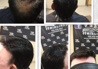 Hair systems for men in Burlington and Stoney creek