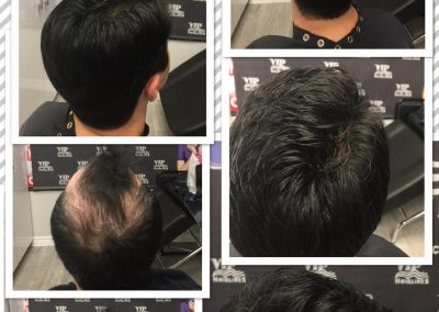 Hair systems for men in Stoney Creek and Burlington