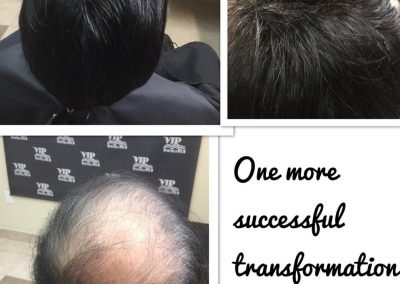 Hair replacement in Stoney Creek and Burlington