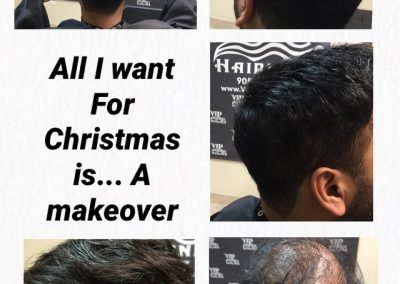 Great way to start a new year! Hair replacement, non surgical