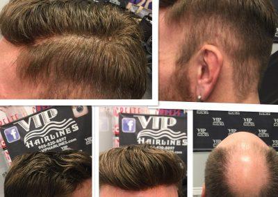 Mens Hair system transformation