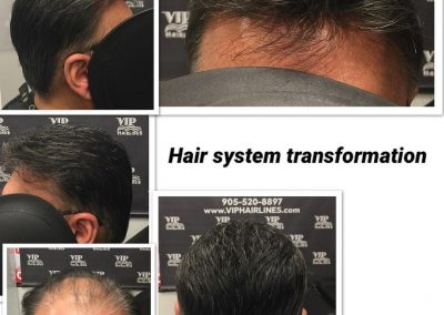 Hair thinning solution in Stoney Creek and Burlington