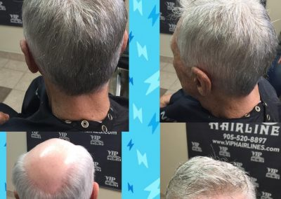 Hair replacement specialist for men and women in Stoney Creek and Burlington