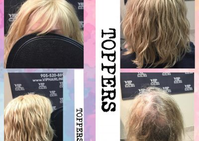 From Hair thinning, to natural and flawless available in Stoney Creek and Burlington