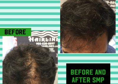 Hair Replacement Specialist in Stoney Creek and the GTA