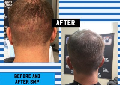 Scalp micro pigmentation in Stoney Creek and the GTA