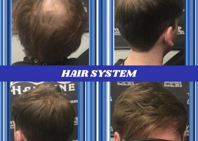 Hair Replacement for Men in Stoney Creek and Burlington