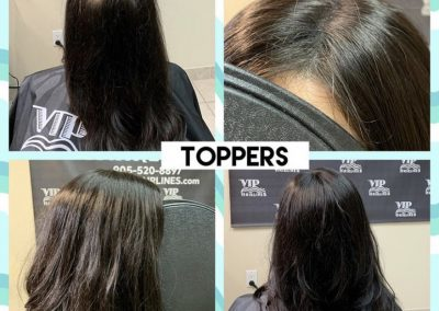 Hair Loss Solution For Women in Stoney Creek and Burlington