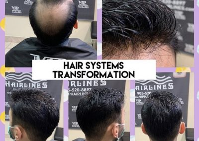 Non surgical Hair replacement in Stoney Creek and GTA