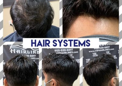 Non surgical hair replacement in Stoney Creek and Burlington