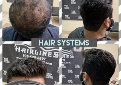 Hair System transformation available in Stoney Creek and GTA