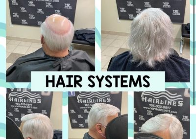 Hair replacement specialist in Stoney Creek and Burlington