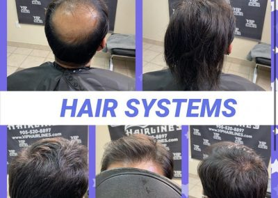 Hair systems for men in Stoney Creek and GTA